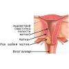 Рак шейки матки.  Лечение.